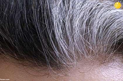 چرا موی بعضیها زود سفید میشود؟