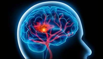 هشدار درباره افزایش سکته مغزی؛ علائم سکته مغزی چیست؟