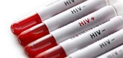 ایدز و آماری که جامعه را ترساند