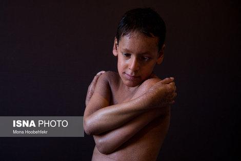 حسین جانبزرگی، ۱۰ ساله، به بیماری ژنتیکی ایکتیوز (Ichthyosis) (نوع خاص و شدید خشکی پوست) مبتلاست. از بدو تولد برای ادامه روند درمان و قطع امید کردن پزشکان محلی، از شهرستان ازنا (در استان لرستان) با خانوادهاش به تهران آمده است. او در کلاس چهارم دبستان تحصیل میکند. حسین آرزو دارد برای مادرش ماشین و خانه بخرد و چشمهایش زودتر خوب شود تا بتواند با دوچرخه به مدرسه برود.