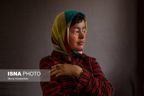 مریم کرمی، ۲۹ ساله، به بیماری ایکتیوز (Ichthyosis) (نوع خاص و شدید خشکی پوست است) مبتلاست. مریم میگوید بیماریاش باعث نشده از رسیدن به آرزوهایش دست بکشد. او صدای خوبی دارد و به همین خاطر آرزو دارد خواننده شود. او همچنین دوست دارد معلم معلولان باشد و هنرهایش را به آنها آموزش دهد.