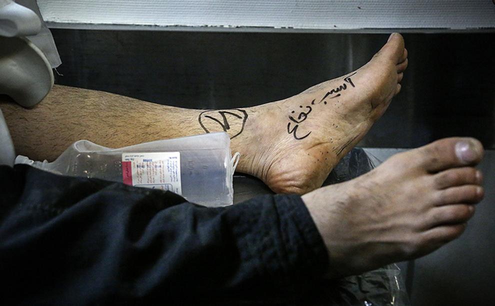 (تصاویر) اعزام مجروحان زلزله به تهران و کرج