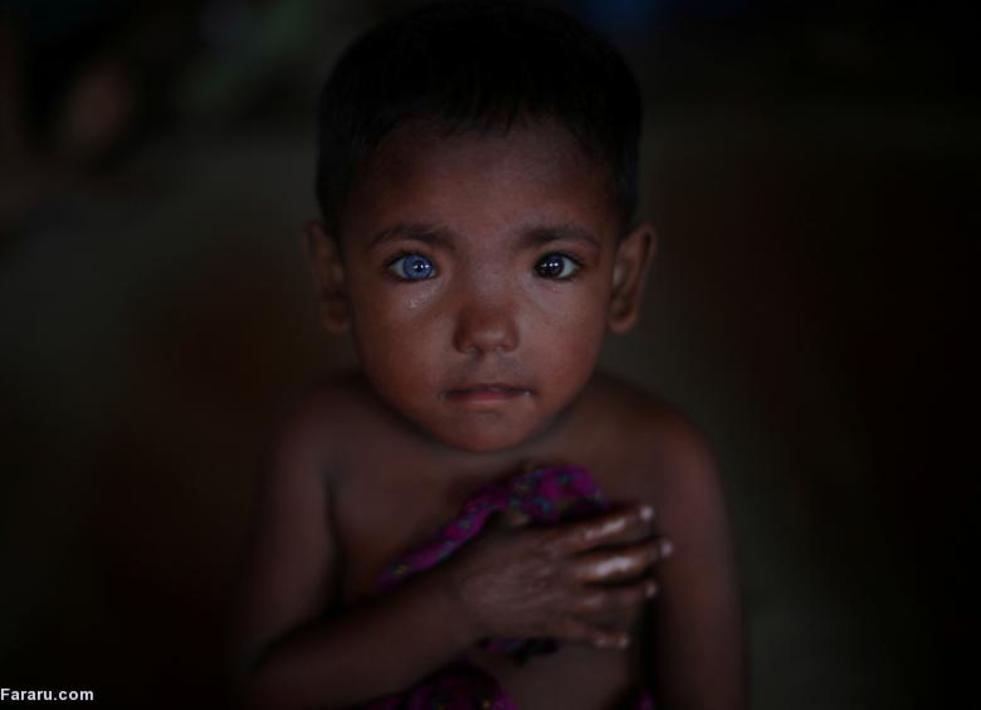 حسن آرا پناهجوی چهار ساله روهینگایی در اردوگاه بنگلادش