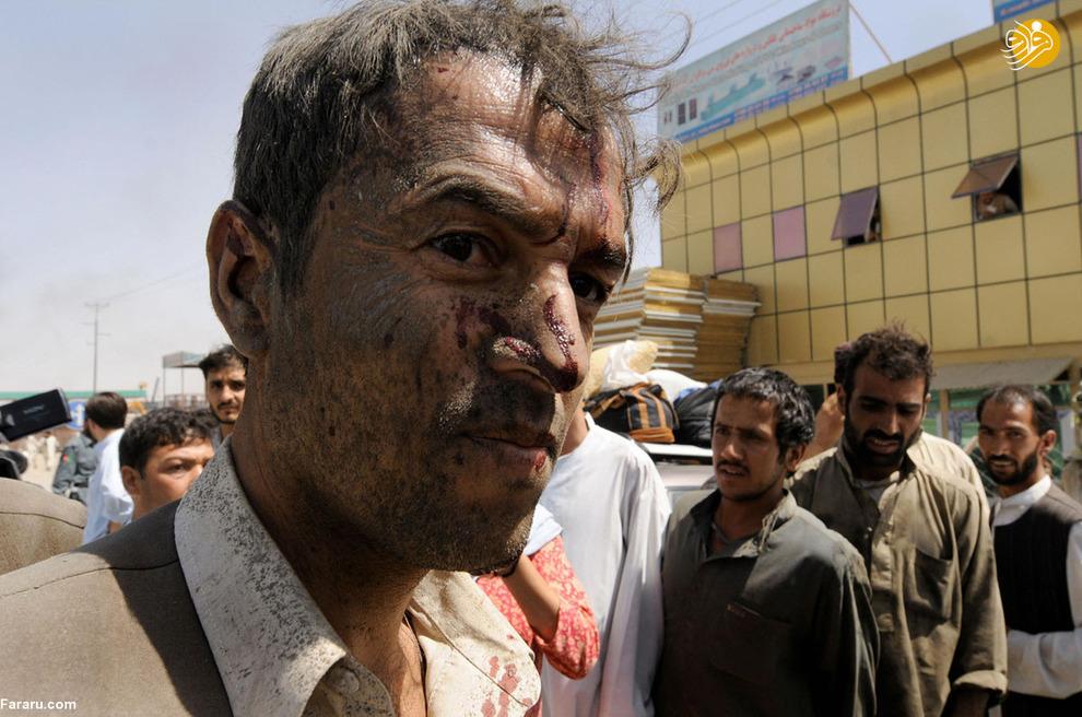 مرد مجروح در حمله انتحاری هجده اوت سال دو هزار و نه طالبان در کابل که منجر به کشته شدن دوازده نفر شد. این حمله دو روز بیش از انتخابات ریاست جمهوری رخ داده بود.